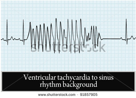 stock-vector-paroxysm-of-ventricular-tachycardia-in-sinus-rhythm-background-vector-professional-information-91857905